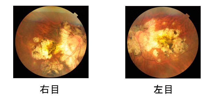 病的近視による網膜脈絡膜萎縮