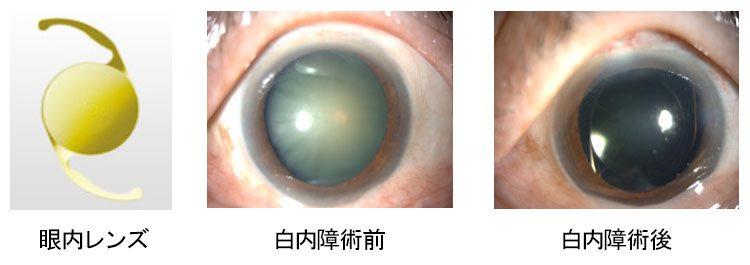 白内障手術の前後の比較写真