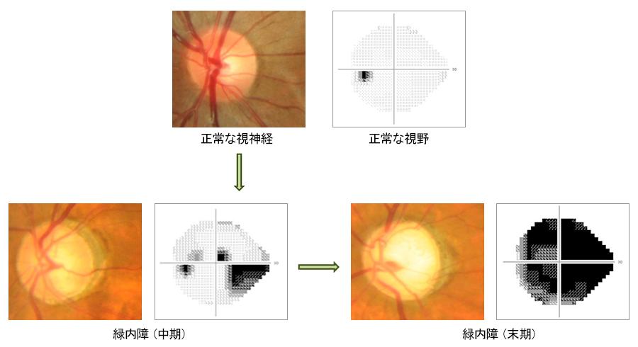 視神経と視野の変化の説明画像